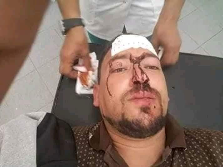 الصويرة : ناشط حقوقي يتعرض للإعتداء من طرف قائد